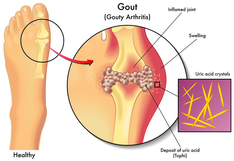how-to-remove-uric-acid-crystallization-in-joints-wp-fb
